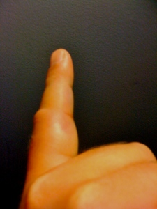 Notice the thickness around the base of the finger. Not supposed to be like dat!